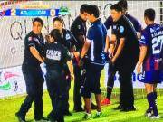 血腥慎入,墨西哥联赛球员为了进球拼断脚踝