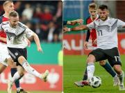 受伤,托伊歇特离开德国U21